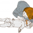 A csecsemőkori újraélesztés lépései
